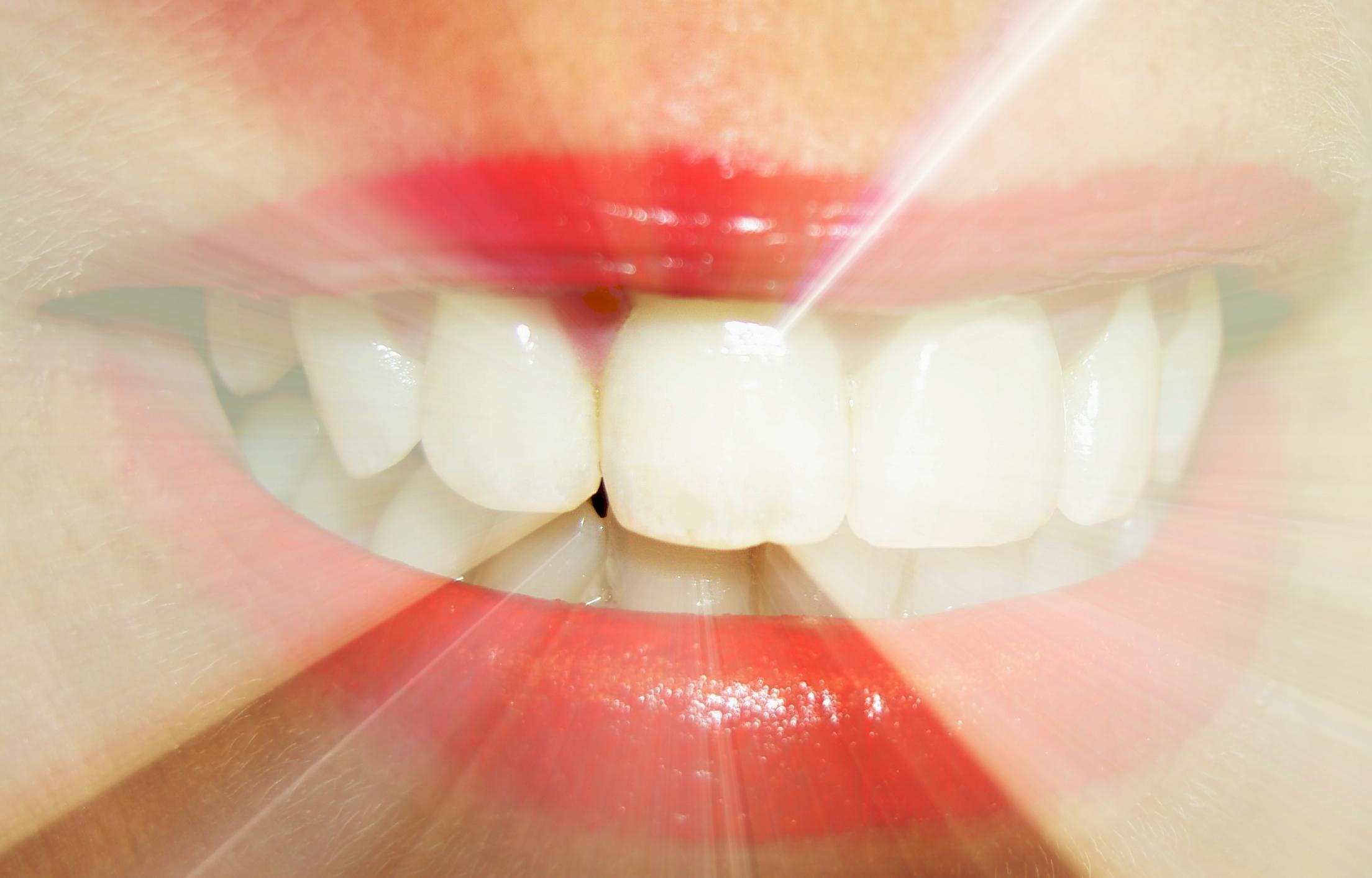Zähne – Gebiss – CMD
